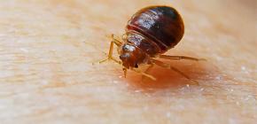 ภาพถ่ายของ bedbug bites